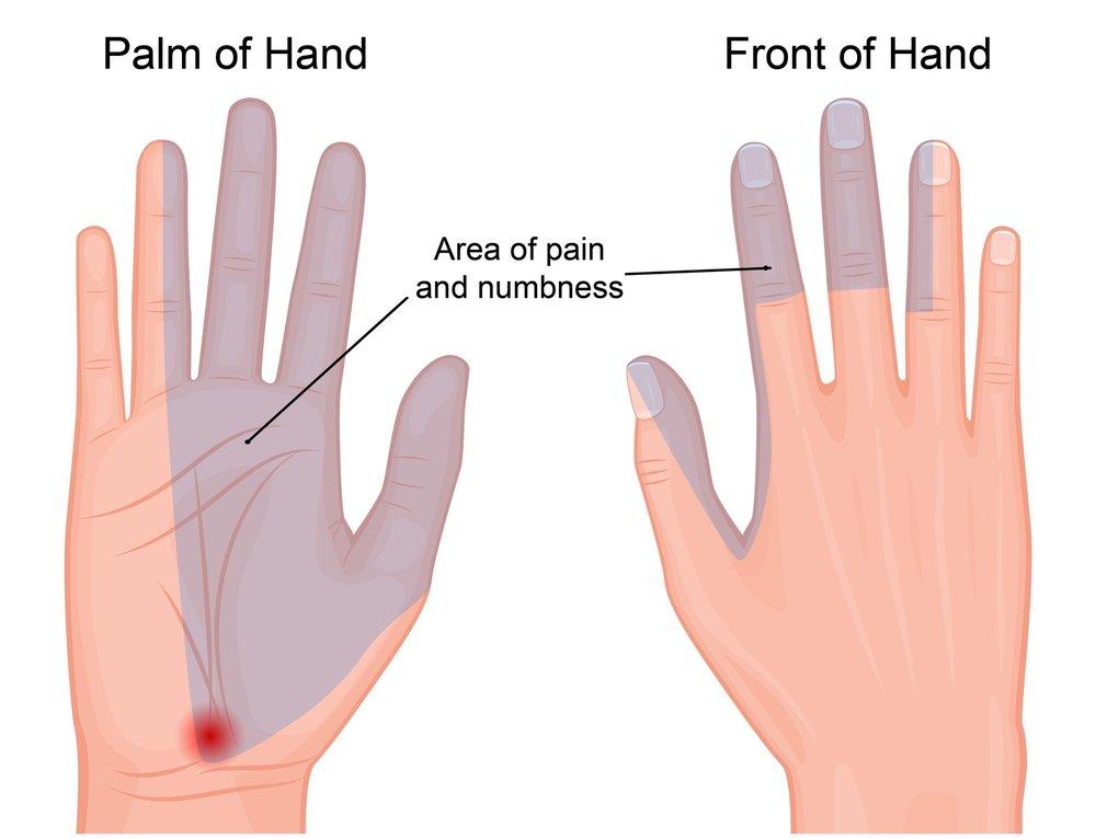 تأثیر مثبت موس ارگونومی روی دست