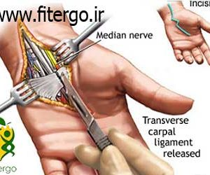 درمان مچ درد - موس ارگونومی